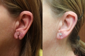 ear-lobe-repair-02