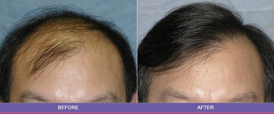 Hair-Transplant-In-Chandigarh